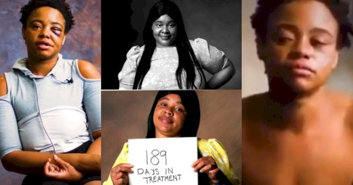 Amazing Transformation Of Girl Who Was Ruined By Crack (Photos)