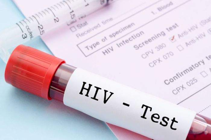 41% Of Nigerians Living With HIV - Report